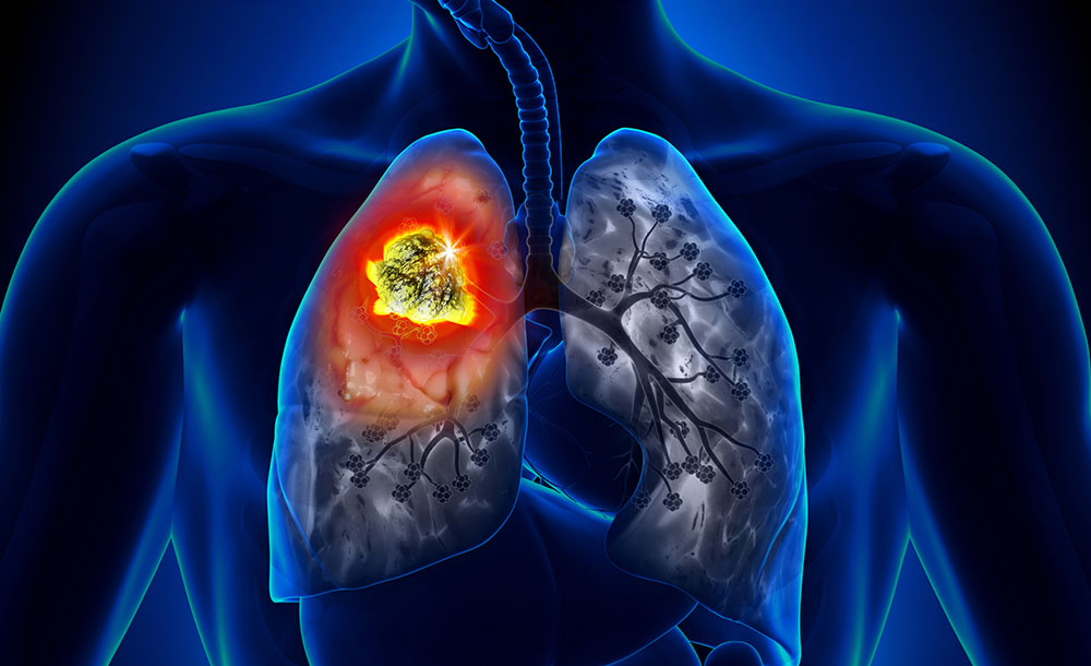 Prototype Drug Uses Novel Mechanism to Treat Lung Cancers - NI ...