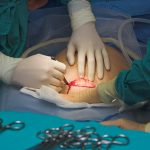 Doctor making an incision for a Cesarean section birth