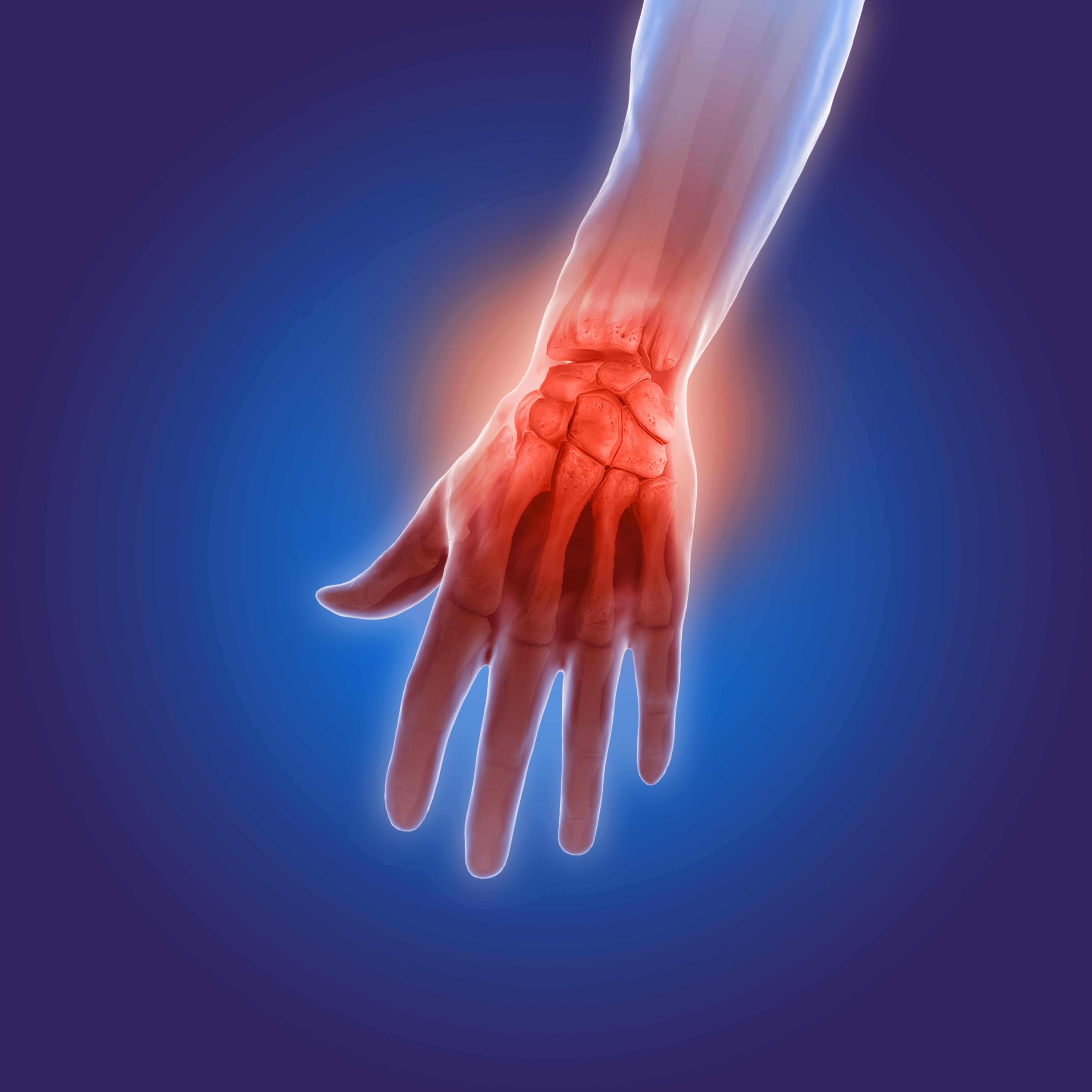 3d illustration of arthritis pain in hands