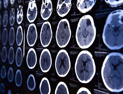 Non-Invasive Brain Imaging Shows Readiness of Trainees