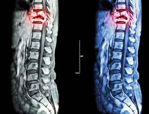 New Study Finds Widespread Consequences After Traumatic Spinal Cord Injury