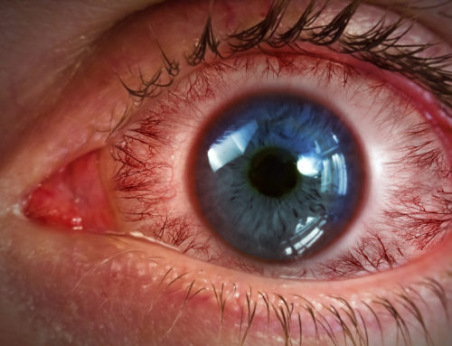Drug Treats Retinal Diseases with Drops Instead of Injections
